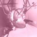 zena podstupujúca v 30. rokoch liecbu pieh